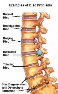disc bulge disc herniation